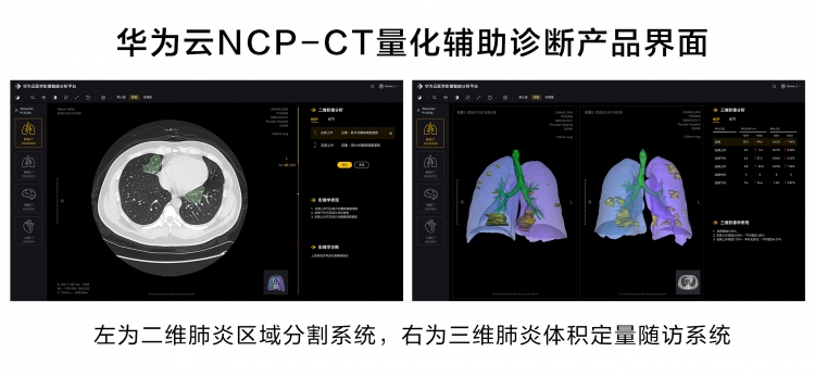 华为云推出新冠肺炎AI辅助诊断服务,疫情期间免费对定点收治医院开放