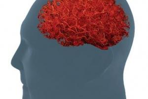 MaxQ AI集成了可检测成像中脑出血的AI软件