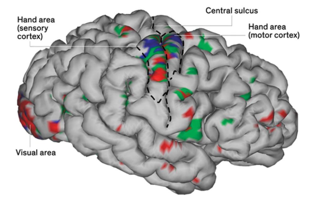 科学家打造全套人工神经系统,让瘫痪病人重新控制身体