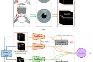 百度智慧医疗携手中山眼科研发3D电子房角镜,成果首登眼科国际顶刊